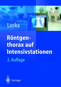 Cover Röntgenthorax auf Intensivstationen