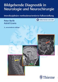 Cover Bildgebende Diagnostik in Neurologie und Neurochirurgie